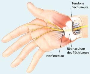 Karpalband, straffes Gewebe-es wird bei der Operation durchtrennt, entlastet so den Nerv